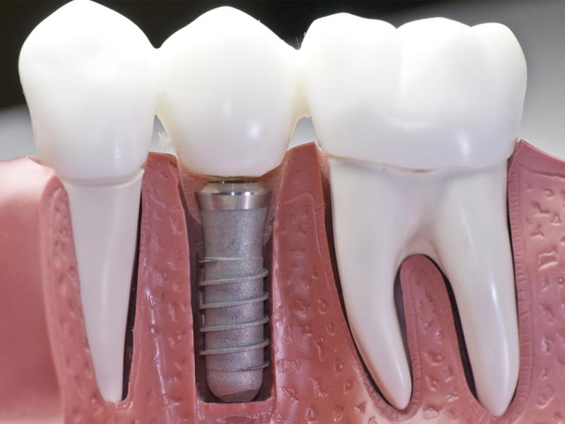 dental implants in townsville